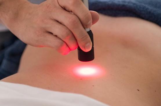 epilazione laser a diodi